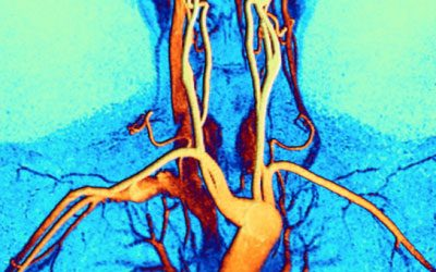 Home-CardiacMRI